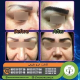eyebrow-transplantation-women10