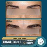 eyebrow-transplantation-women11