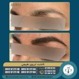 eyebrow-transplantation-women12