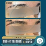 eyebrow-transplantation-women14