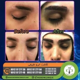 eyebrow-transplantation-women15