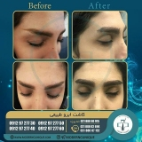 eyebrow-transplantation-women16