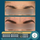 eyebrow-transplantation-women17