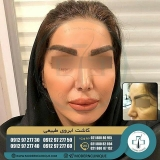 eyebrow-transplantation-women19