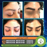 eyebrow-transplantation-women2