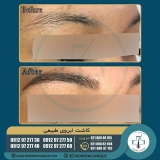 eyebrow-transplantation-women20