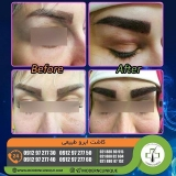 eyebrow-transplantation-women3