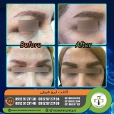 eyebrow-transplantation-women4