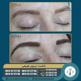 eyebrow-transplantation-women5