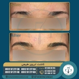 eyebrow-transplantation-women6