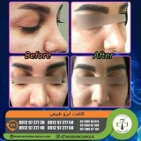 eyebrow-transplantation-women7