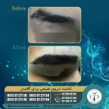 eyebrow-transplantation-women8