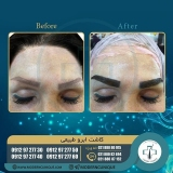 eyebrow-transplantation-women9