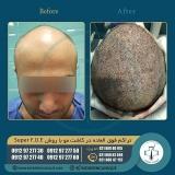 hair-transplantation30