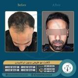 hair-transplantation31