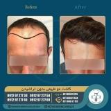 hair-transplantation32