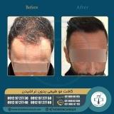 hair-transplantation34