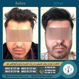 hair-transplantation35