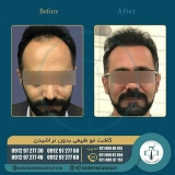 hair-transplantation36