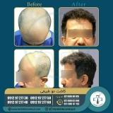 hair-transplantation37