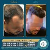 hair-transplantation38