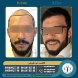 hair-transplantation39