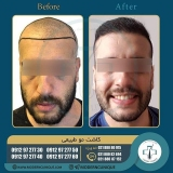 hair-transplantation40