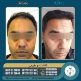 hair-transplantation41