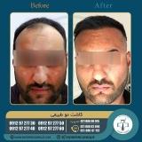 hair-transplantation43