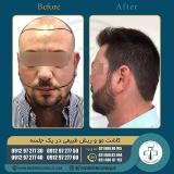 hair-transplantation44