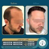hair-transplantation46