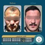 hair-transplantation47
