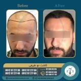 hair-transplantation48