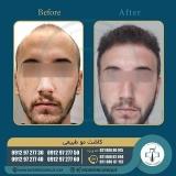 hair-transplantation50