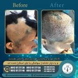hair-transplantation51