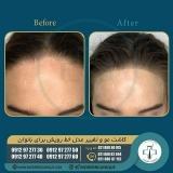 hair-transplantation-women