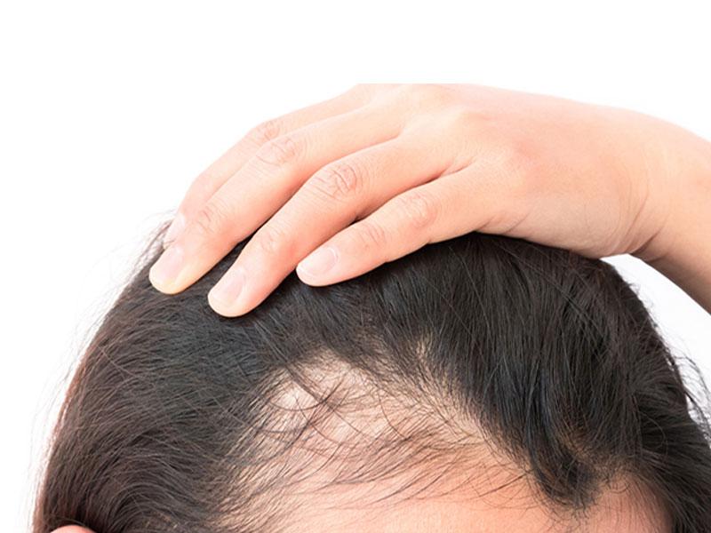 شرایط پیوند موی طبیعی