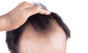 ریزش مو برای آقایان