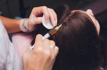 دوران بهبودی پس از کاشت مو