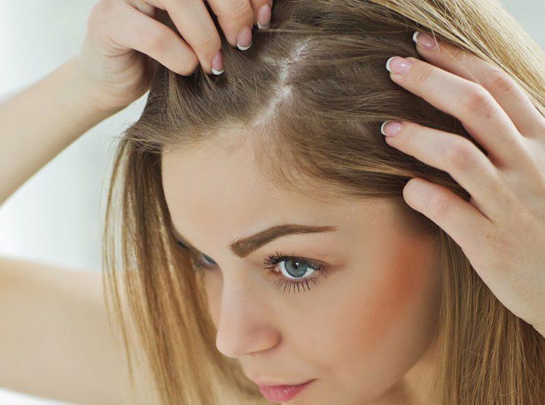مزوتراپی مو و ریزش مو