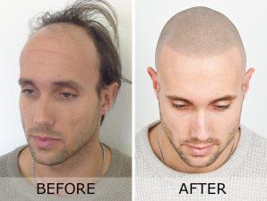 کاشت مو و میکرو اسکالپ