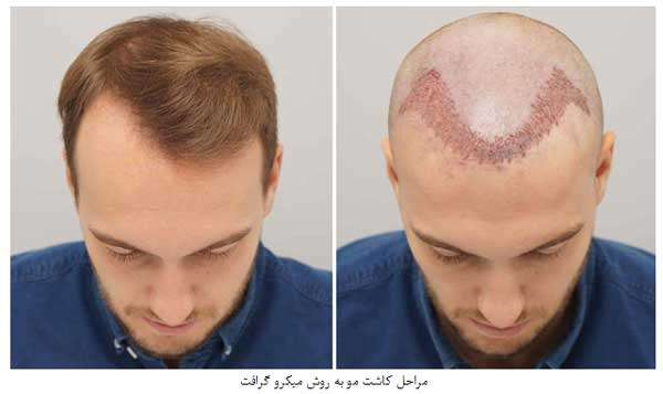 کاشت مو به روش میکرو گرافت