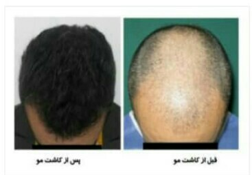 کاشت مو در سال 2020