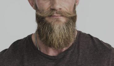 Beard implants