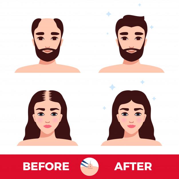 تفاوت کاشت مو با ترمیم