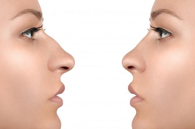 تفاوت رینوپلاستی با عمل بینی