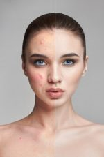 راز داشتن پوستی بدون لک