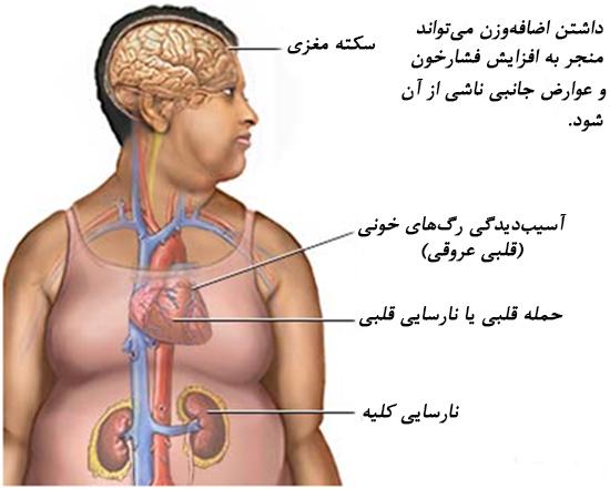 بیماری های مرتبط با اضافه وزن