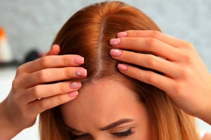سلامت مو در زنان