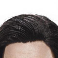 پروتز مو , پروتز مو سر , بهترین پروتز مو